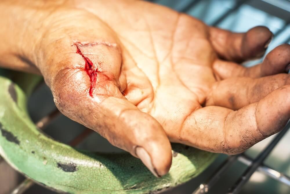 dr reed ward laceration repair