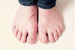 ingrown toenails doctor reed ward